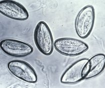 The microscopic, but distinctive, pinworm eggs appear flattened on one side.